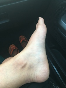 My left foot, two days after my fall.